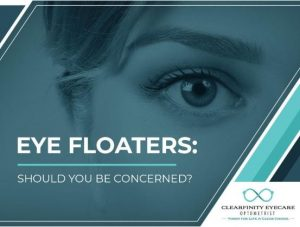 Eye Floaters: Should You Be Concerned?